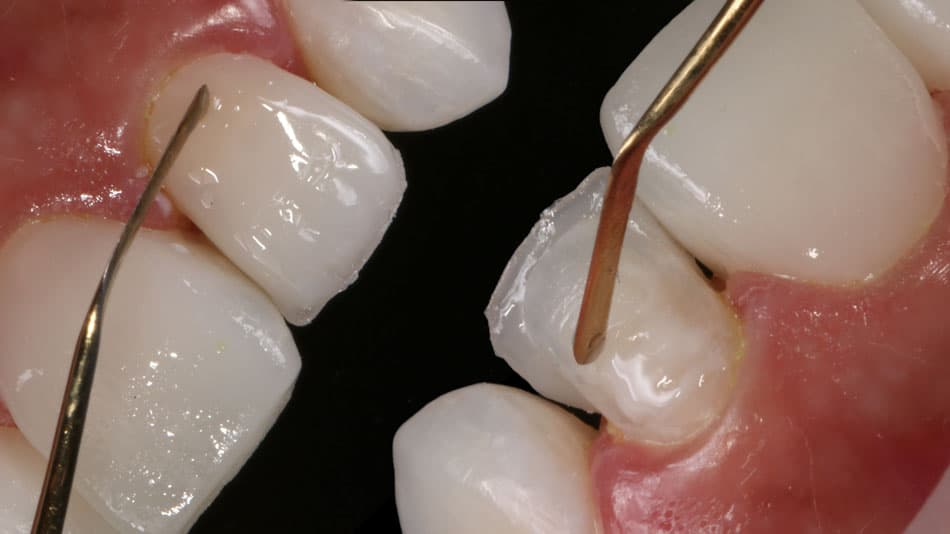Facetas dentais na recuperação e aprimoramento dos sorrisos