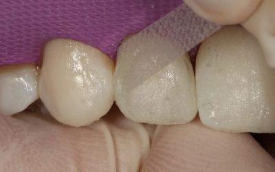 Acabamento e polimento proximal em dentes anteriores: nova técnica