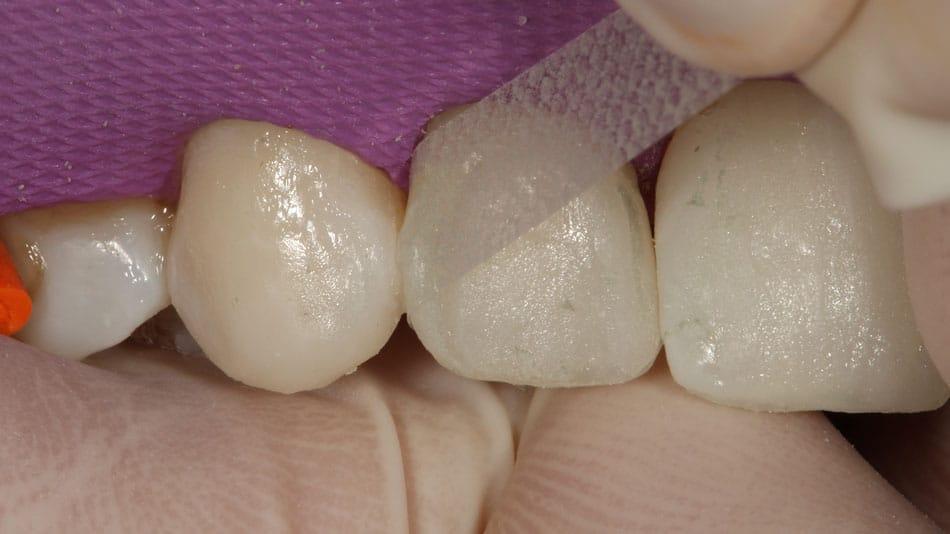 acabamento e polimento proximal