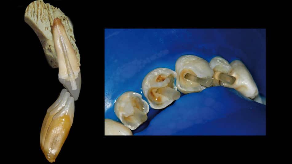 Pinos em dentes anteriores: dificuldade de centralização