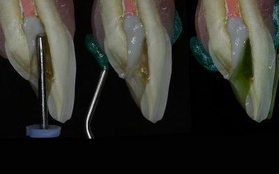 Clareamento interno em dentes tratados endodonticamente